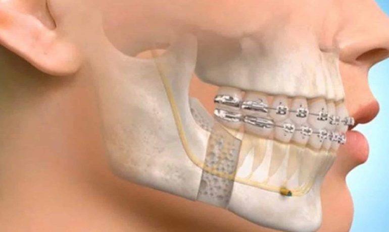 Η ειδικότητα της στοματικής και γναθοπροσωπικής χειρουργικής